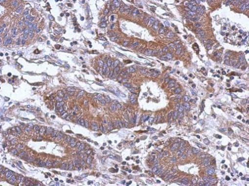 Immunohistochemistry (Formalin/PFA-fixed paraffin-embedded sections) - Anti-PAPSS1 antibody (ab228622)