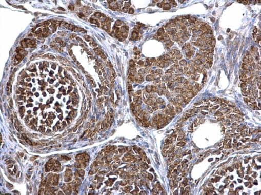 Immunohistochemistry (Formalin/PFA-fixed paraffin-embedded sections) - Anti-ECHS1 antibody (ab228631)
