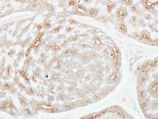 Immunohistochemistry (Formalin/PFA-fixed paraffin-embedded sections) - Anti-ADPGK antibody (ab228633)