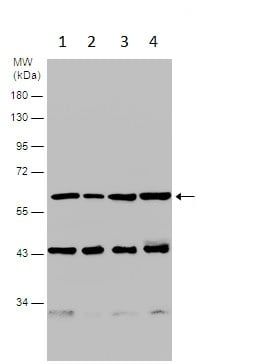 Western blot - Anti-Coronin 1a/TACO antibody - C-terminal (ab228635)