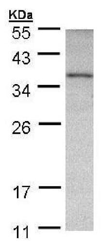 Western blot - Anti-Ornithine Carbamoyltransferase/OTC antibody (ab228646)