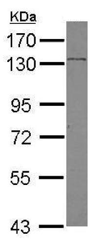 Western blot - Anti-SREBP2 antibody (ab228653)