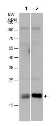 Western blot - Anti-TMP21 antibody (ab228665)