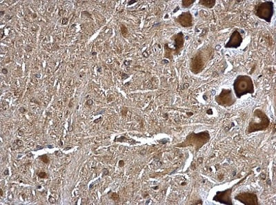 Immunohistochemistry (Formalin/PFA-fixed paraffin-embedded sections) - Anti-TMP21 antibody (ab228665)