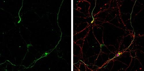 Immunocytochemistry/ Immunofluorescence - Anti-Gephyrin antibody (ab228674)