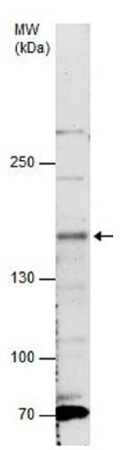 Western blot - Anti-NTE antibody - C-terminal (ab228683)