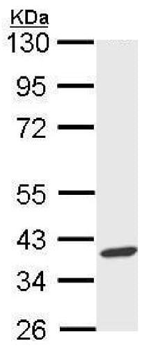 Western blot - Anti-AIP antibody (ab228684)