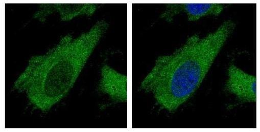 Immunocytochemistry/ Immunofluorescence - Anti-AIP antibody (ab228684)