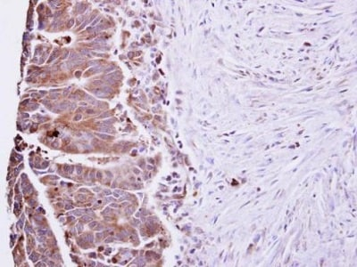 Immunohistochemistry (Formalin/PFA-fixed paraffin-embedded sections) - Anti-IL-22 antibody (ab228687)