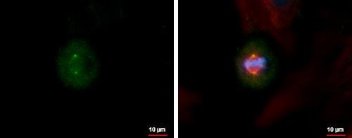 Immunocytochemistry/ Immunofluorescence - Anti-Centrin 3 antibody (ab228690)