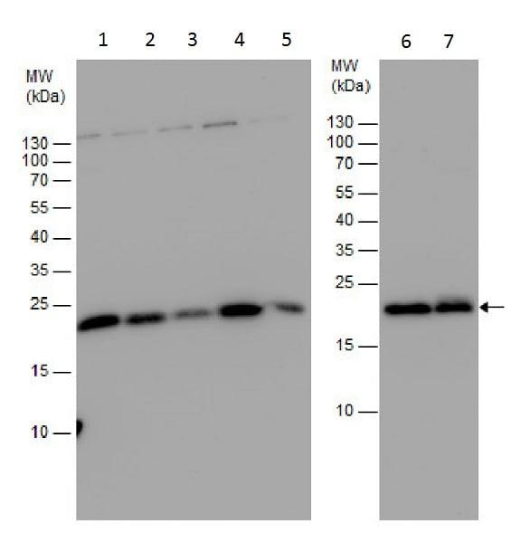 Western blot - Anti-Centrin 3 antibody (ab228690)