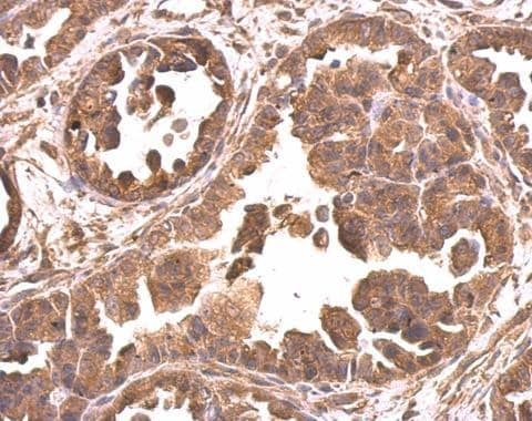 Immunohistochemistry (Formalin/PFA-fixed paraffin-embedded sections) - Anti-eIF4A2 antibody (ab228693)