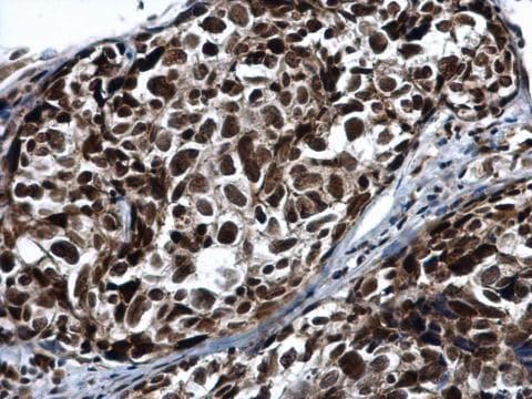 Immunohistochemistry (Formalin/PFA-fixed paraffin-embedded sections) - Anti-PRP19 antibody (ab228694)