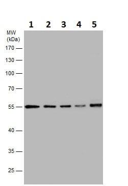 Western blot - Anti-TUBA4A antibody (ab228701)
