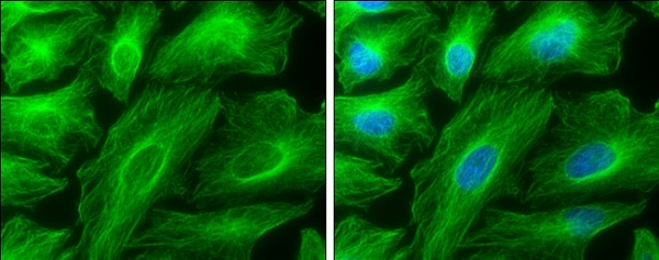 Immunocytochemistry/ Immunofluorescence - Anti-TUBA4A antibody (ab228701)
