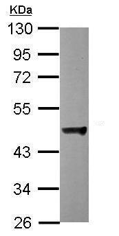 Western blot - Anti-p50 dynamitin antibody (ab228704)