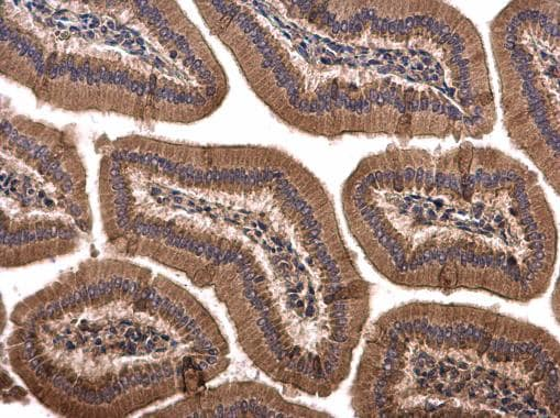 Immunohistochemistry (Formalin/PFA-fixed paraffin-embedded sections) - Anti-Sprouty 4/Spry-4 antibody (ab228712)