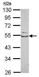 Western blot - Anti-Tryptophanyl tRNA synthetase/WRS antibody (ab228724)