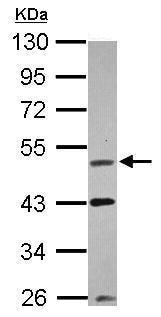Western blot - Anti-VRK1 antibody (ab228725)