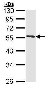 Western blot - Anti-Annexin-11/ANXA11 antibody (ab228731)