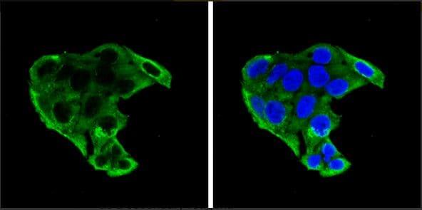 Immunocytochemistry/ Immunofluorescence - Anti-IGFBP1 antibody (ab228741)