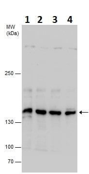 Western blot - Anti-SA1 antibody - C-terminal (ab228758)