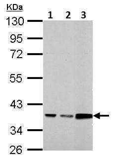 Western blot - Anti-Annexin A3/ANXA3 antibody (ab228761)