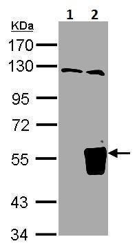 Western blot - Anti-RNF93 antibody - N-terminal (ab228762)