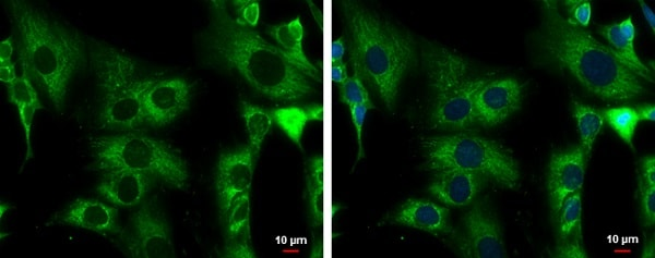 Immunocytochemistry/ Immunofluorescence - Anti-ACADM/MCAD antibody - C-terminal (ab228769)