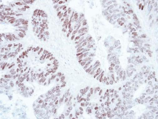 Immunohistochemistry (Formalin/PFA-fixed paraffin-embedded sections) - Anti-SATB1 antibody - C-terminal (ab228772)
