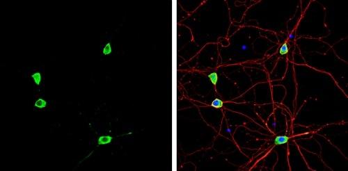 Immunocytochemistry/ Immunofluorescence - Anti-Staufen/STAU1 antibody (ab228773)