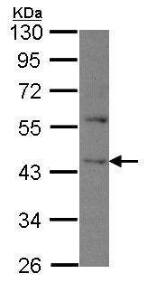 Western blot - Anti-DAPK2 antibody (ab228777)