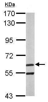 Western blot - Anti-ARIH2/TRIAD1 antibody - C-terminal (ab228779)