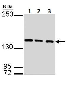 Western blot - Anti-SMC3 antibody - N-terminal (ab228782)