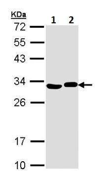 Western blot - Anti-AK2 antibody (ab228786)