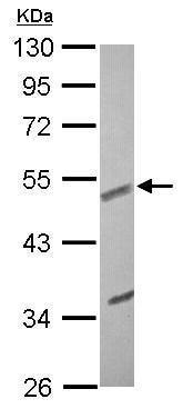 Western blot - Anti-EFEMP1/Fibulin-3 antibody (ab228797)