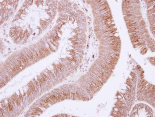 Immunohistochemistry (Formalin/PFA-fixed paraffin-embedded sections) - Anti-EFEMP1/Fibulin-3 antibody (ab228797)