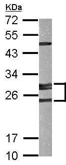Western blot - Anti-AK2 antibody (ab228801)