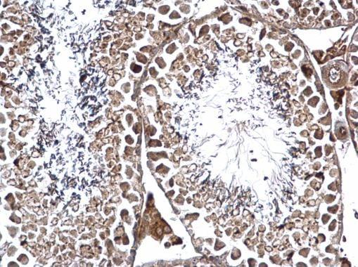 Immunohistochemistry (Formalin/PFA-fixed paraffin-embedded sections) - Anti-XAB1/GPN1 antibody (ab228812)