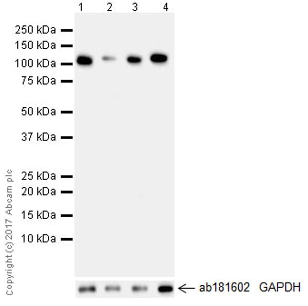 Western blot - Anti-HKDC1 antibody [EPR19835] - BSA and Azide free (ab228817)