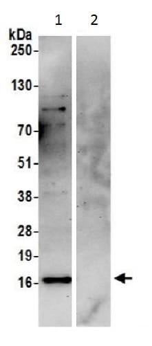 Immunoprecipitation - Anti-HYPK antibody (ab228820)
