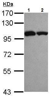 Western blot - Anti-ASCC2 antibody (ab228827)