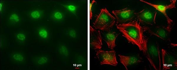 Immunocytochemistry/ Immunofluorescence - Anti-MTF2 antibody - C-terminal (ab228829)
