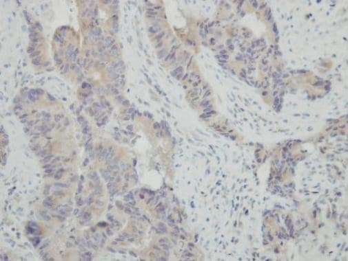 Immunohistochemistry (Formalin/PFA-fixed paraffin-embedded sections) - Anti-HSPBAP1 antibody (ab228839)