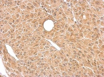Immunohistochemistry (Formalin/PFA-fixed paraffin-embedded sections) - Anti-BACE1 antibody (ab228843)