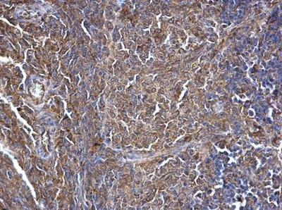 Immunohistochemistry (Formalin/PFA-fixed paraffin-embedded sections) - Anti-SWAP70 antibody - C-terminal (ab228846)