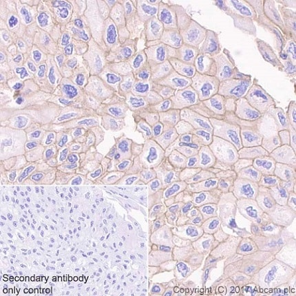 Immunohistochemistry (Formalin/PFA-fixed paraffin-embedded sections) - Anti-RON antibody [EPR20954] - BSA and Azide free (ab228853)