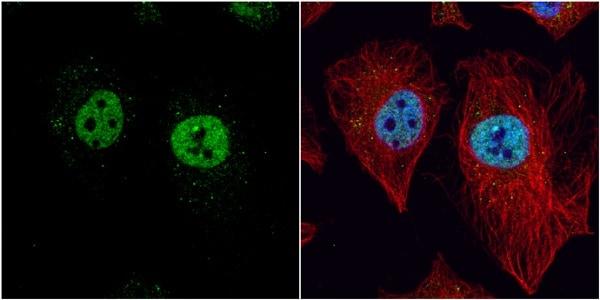 Immunocytochemistry/ Immunofluorescence - Anti-LXR beta/NER antibody (ab228867)