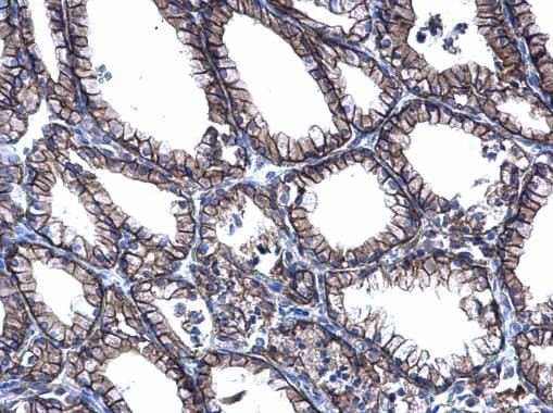 Immunohistochemistry (Formalin/PFA-fixed paraffin-embedded sections) - Anti-PRRG2 antibody (ab228870)