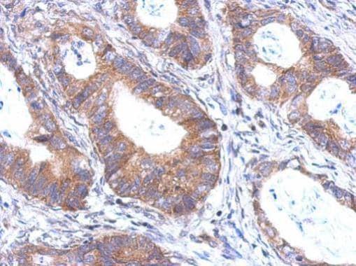 Immunohistochemistry (Formalin/PFA-fixed paraffin-embedded sections) - Anti-BTB/POZ domain containing protein 6 antibody (ab228883)